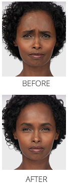 botox_beforeafter