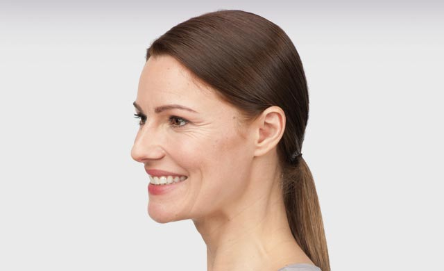 botox-crowsfeet-before