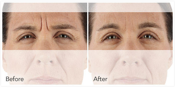 xeomin-before-after