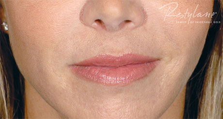 mirav-restylane-after