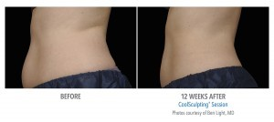 Coolsculpting stomach before and after image