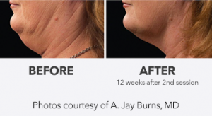 Coolsculpting double chin before and after image